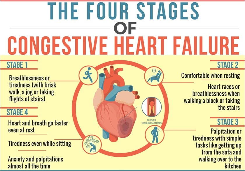 congestive heart failure stages