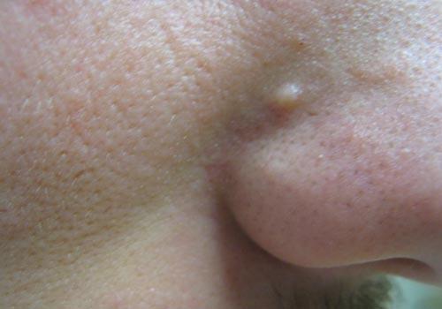 Papules Pimples